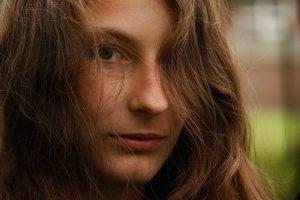 Unreine Haut nicht nur ein Problem von Teenagern